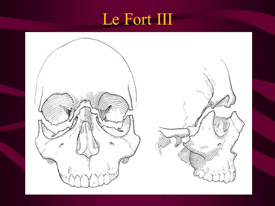 Le Fort III