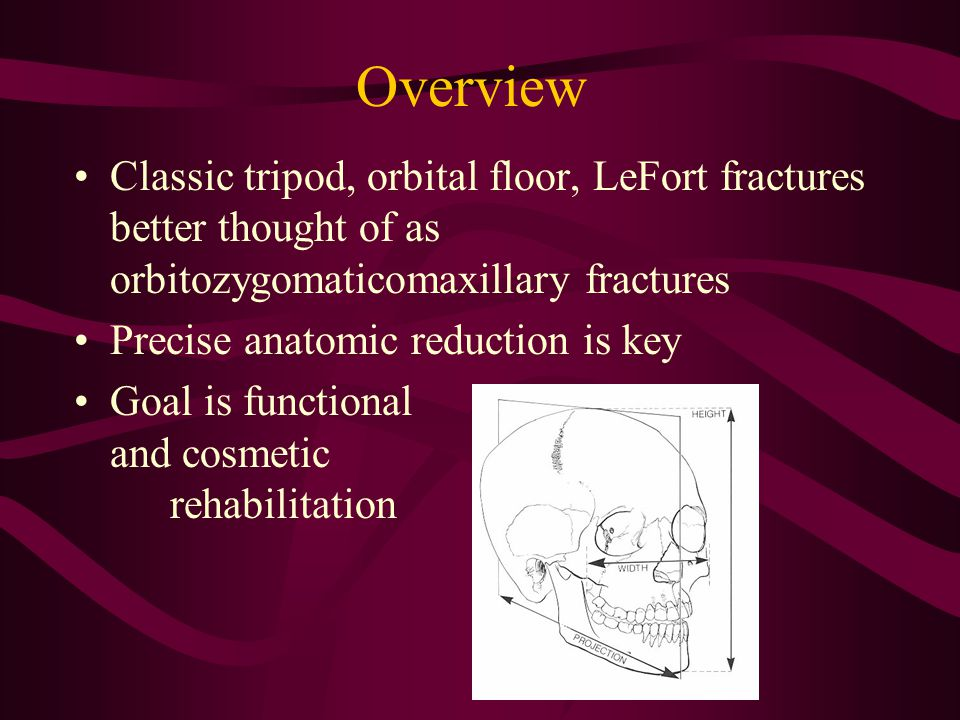 Overview Classic tripod, orbital floor, LeFort fractures better thought of as orbitozygomaticomaxillary fractures.