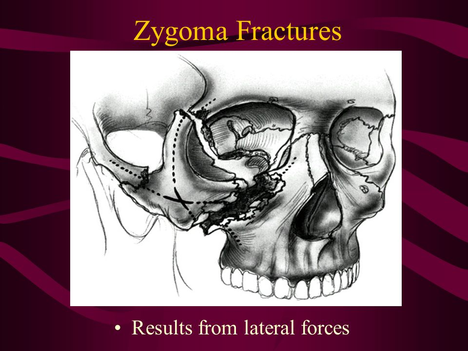 Zygoma Fractures Results from lateral forces