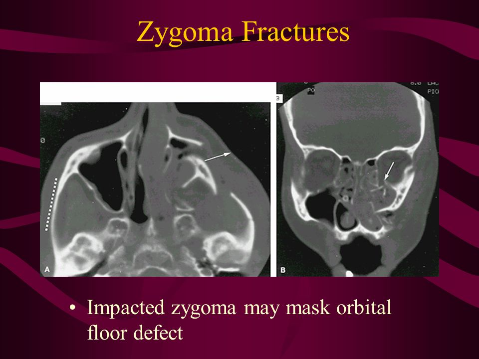 Zygoma Fractures Impacted zygoma may mask orbital floor defect