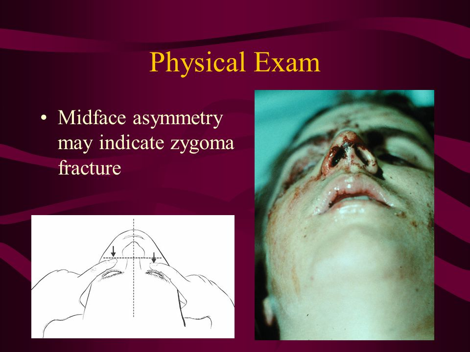 Physical Exam Midface asymmetry may indicate zygoma fracture