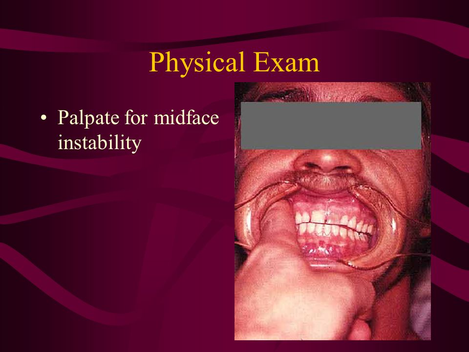 Physical Exam Palpate for midface instability