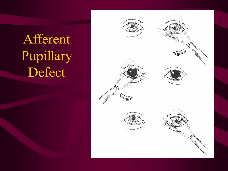 Afferent Pupillary Defect