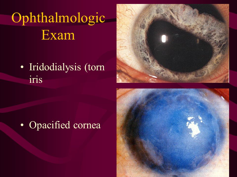 Ophthalmologic Exam Iridodialysis (torn iris Opacified cornea