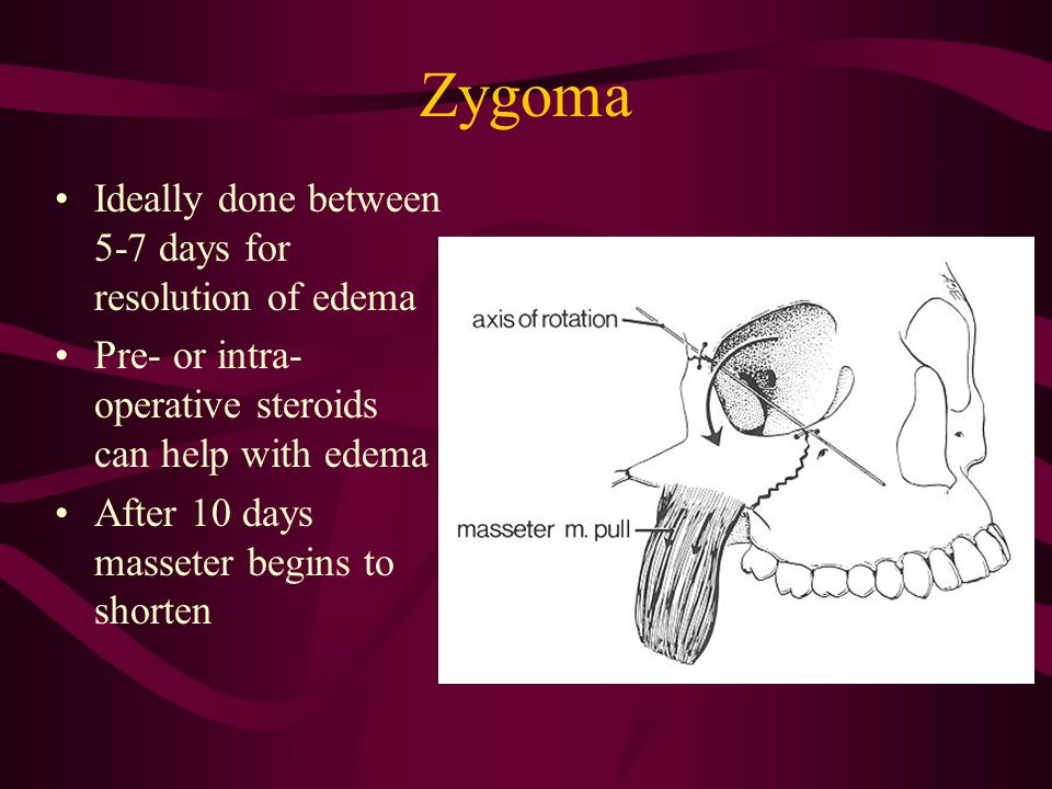 Zygoma Ideally done between 5-7 days for resolution of edema