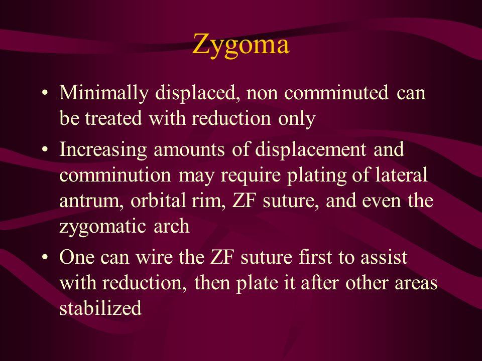 Zygoma Minimally displaced, non comminuted can be treated with reduction only.
