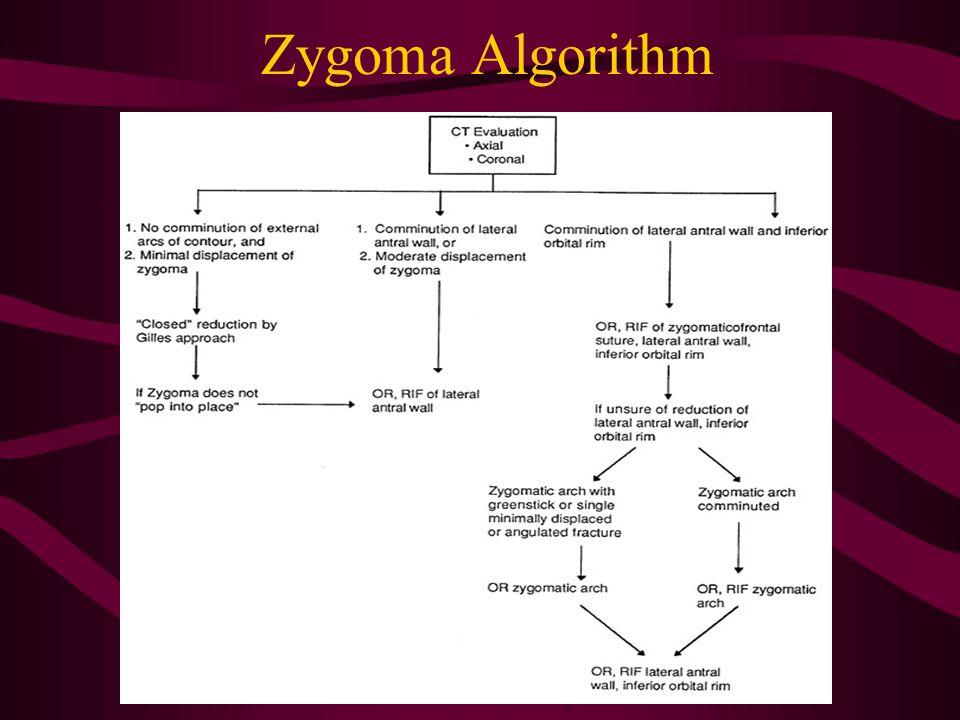 Zygoma Algorithm