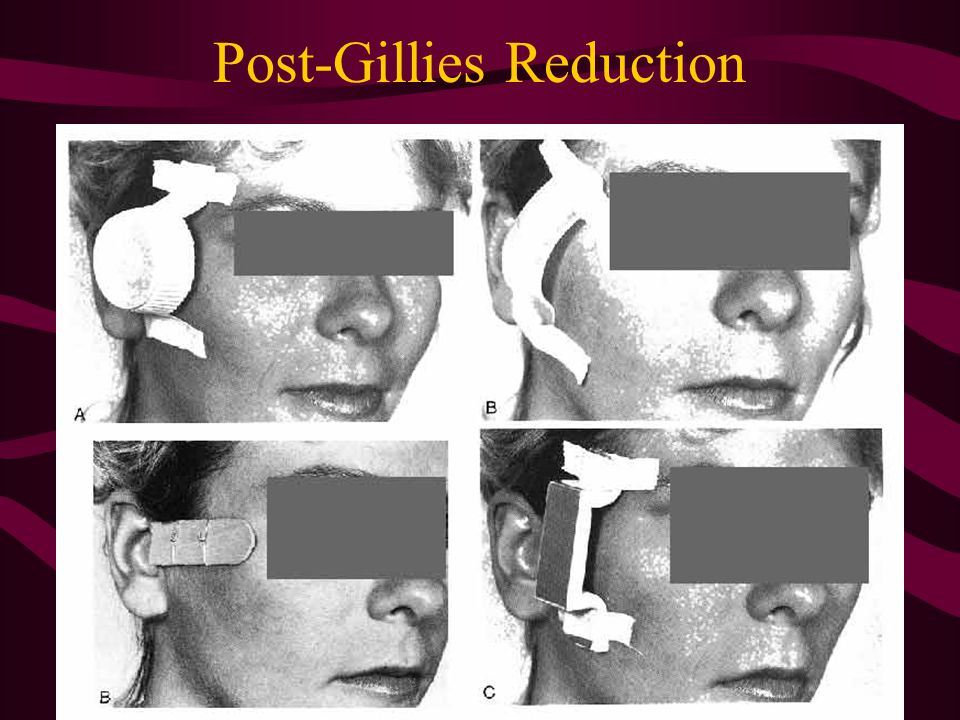 Post-Gillies Reduction