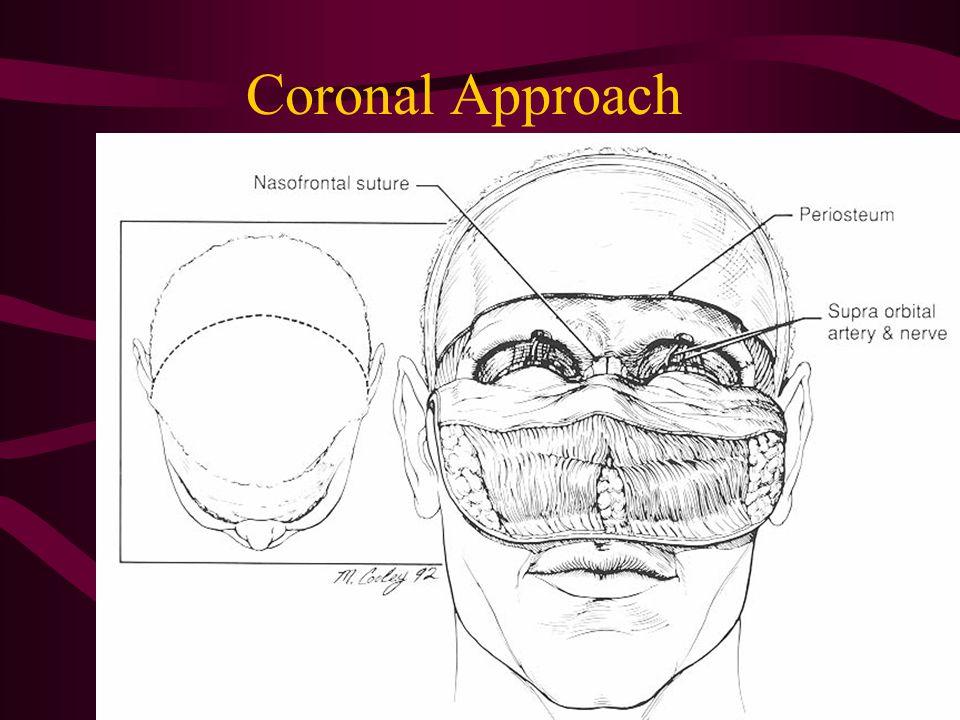 Coronal Approach