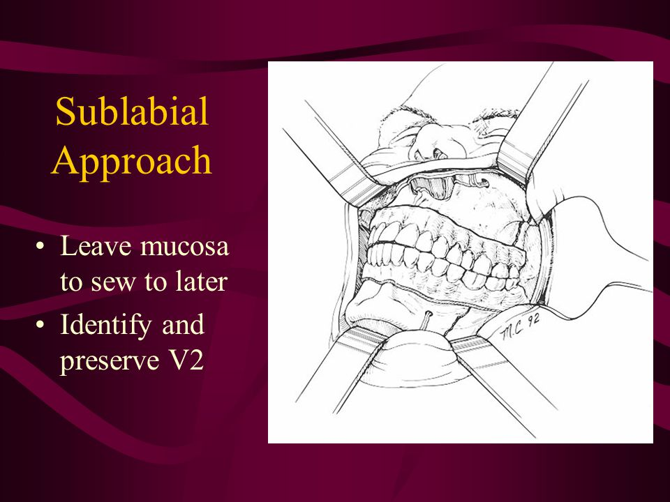 Sublabial Approach Leave mucosa to sew to later