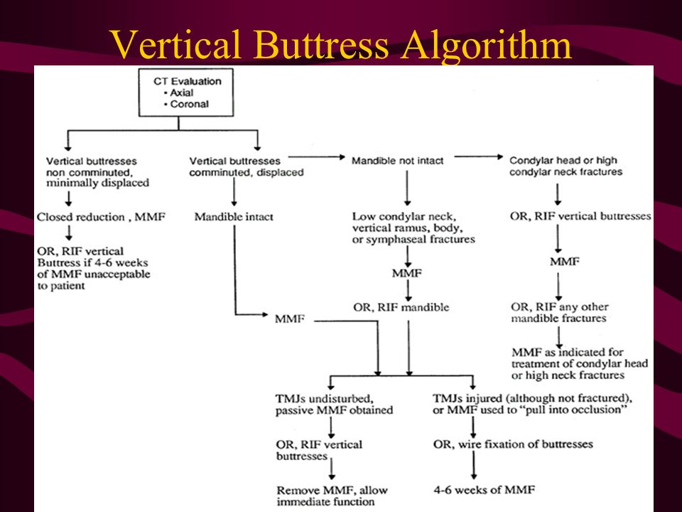 Vertical Buttress Algorithm