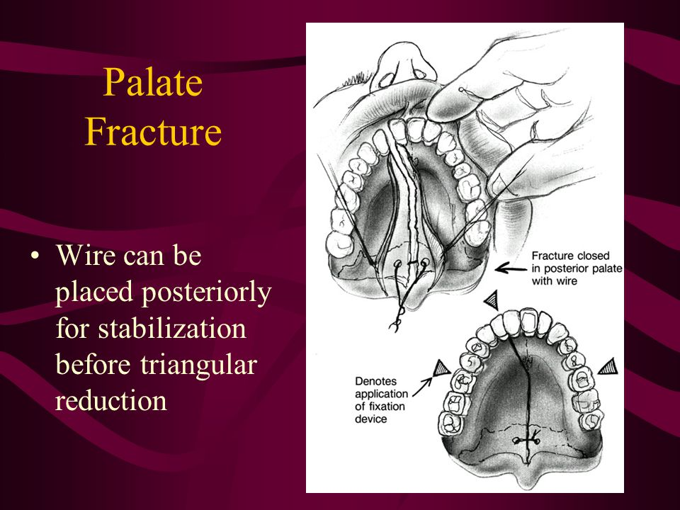 Palate Fracture Wire can be placed posteriorly for stabilization before triangular reduction