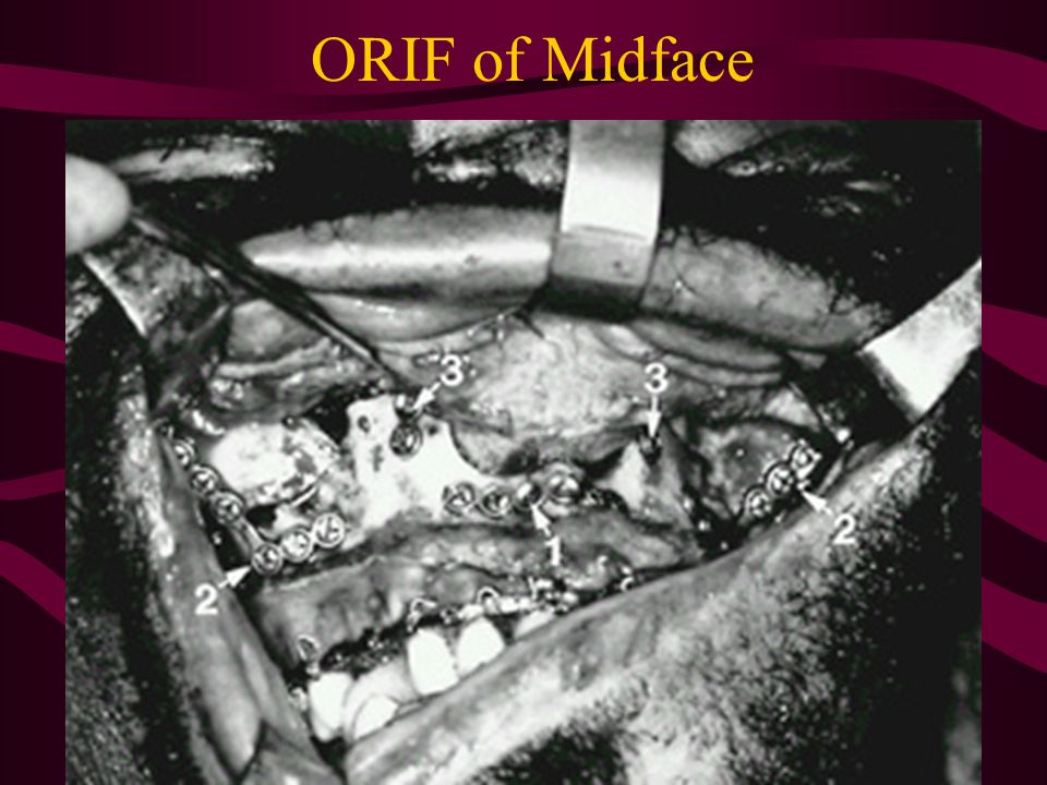 ORIF of Midface