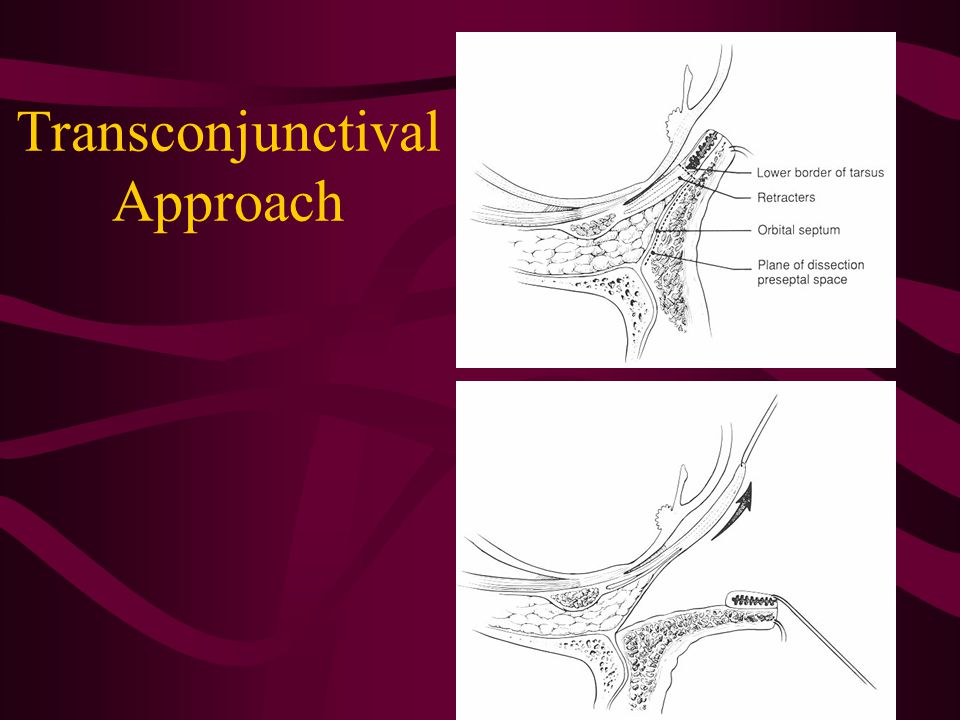 Transconjunctival Approach