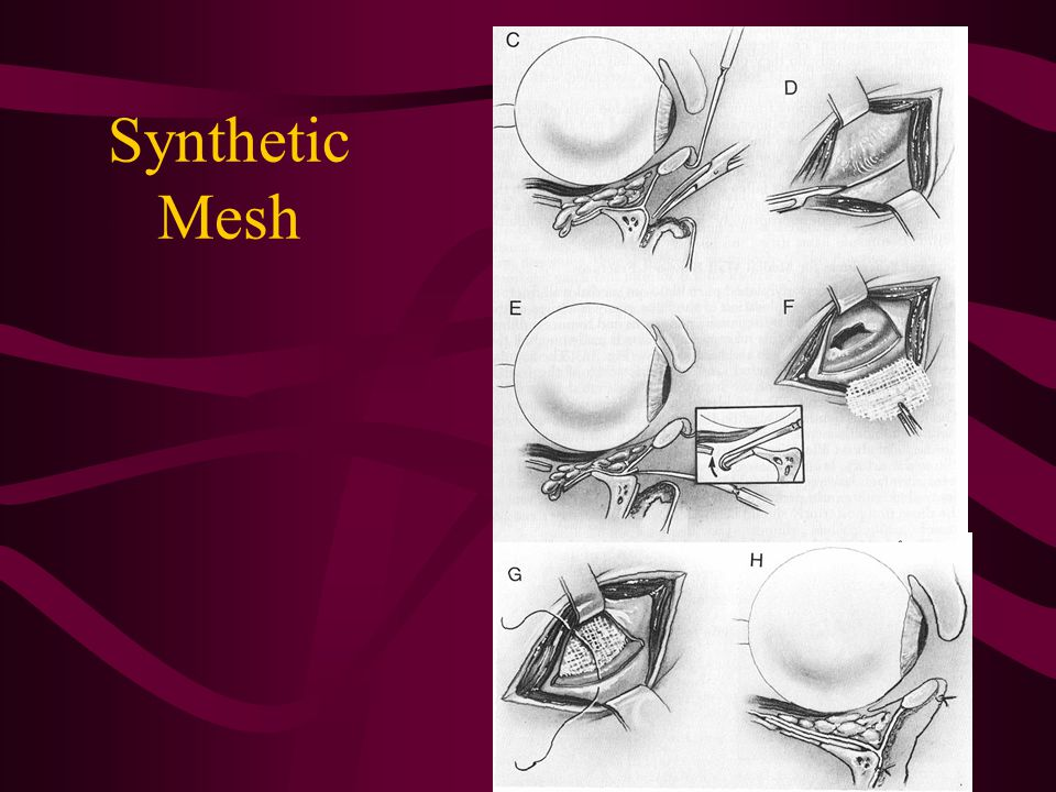 Synthetic Mesh