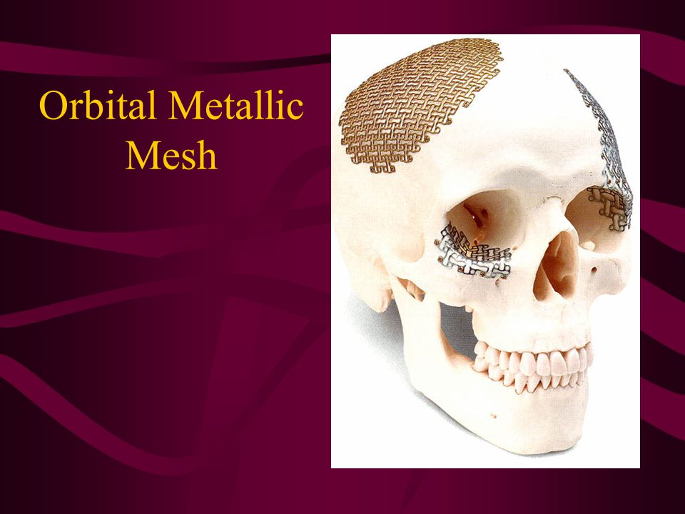 Orbital Metallic Mesh