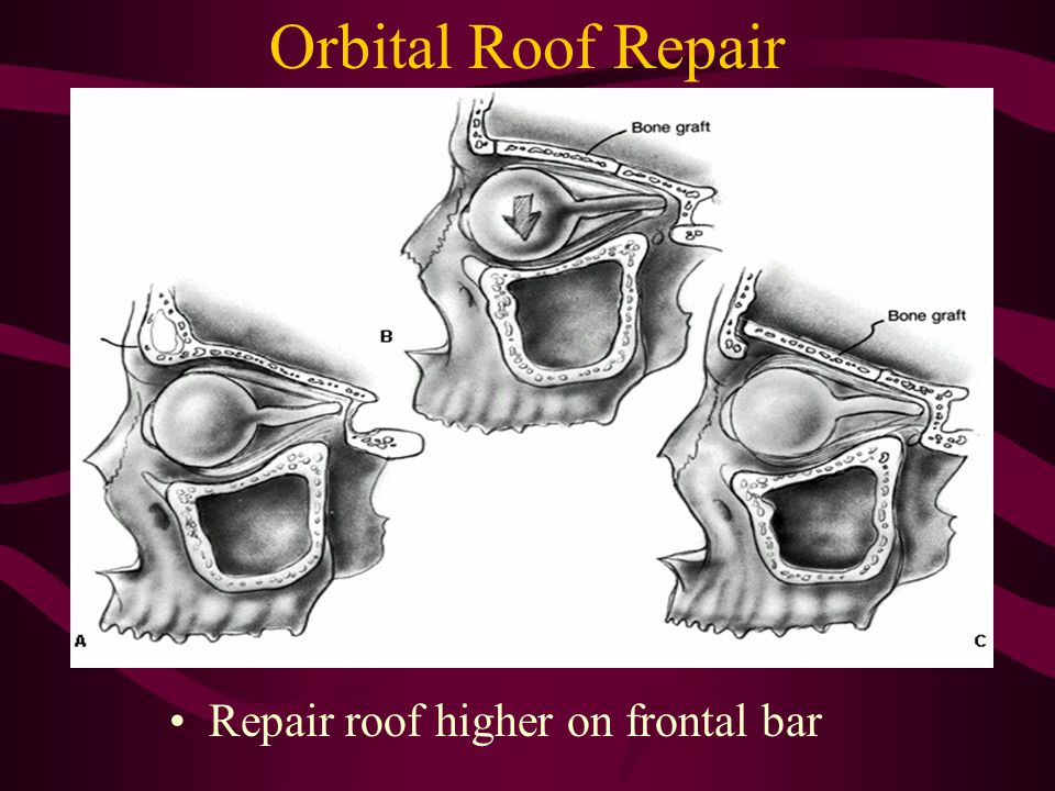 Orbital Roof Repair Repair roof higher on frontal bar
