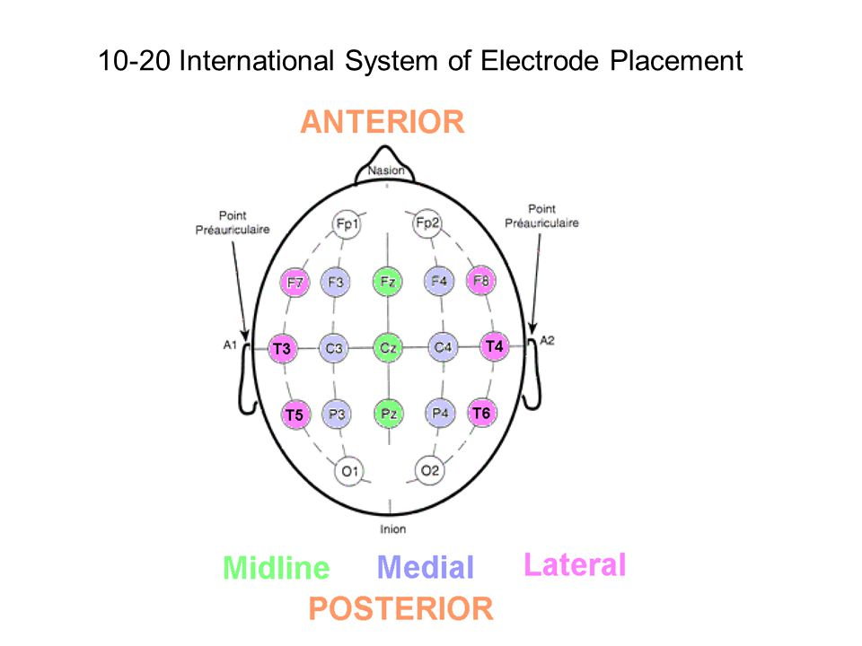 10-20 International System of Electrode Placement