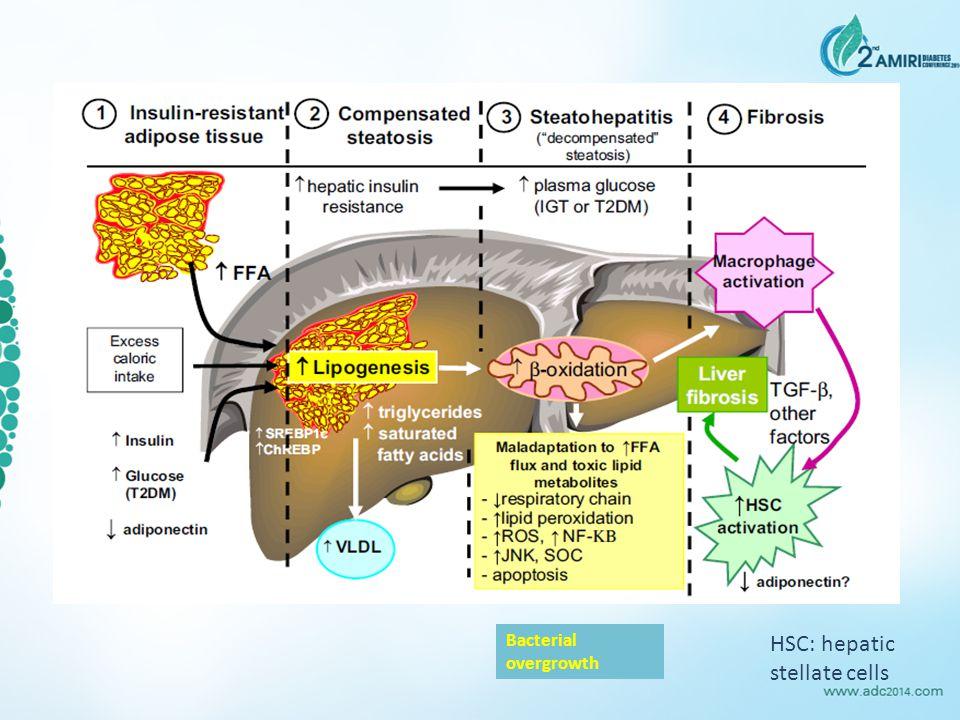 HSC: hepatic stellate cells