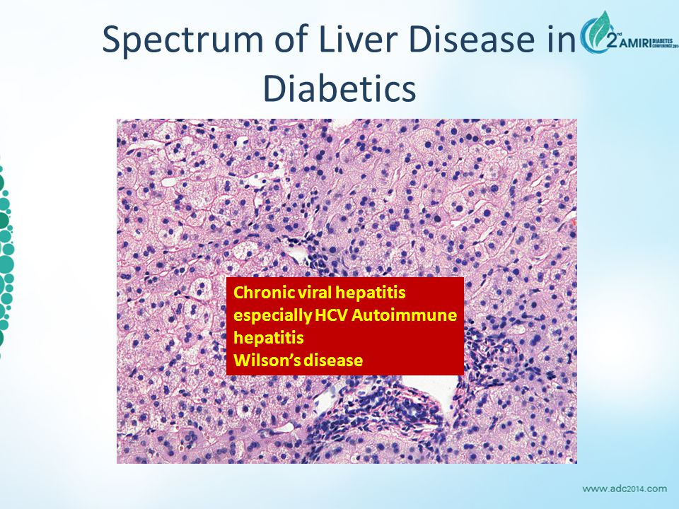 Spectrum of Liver Disease in Diabetics