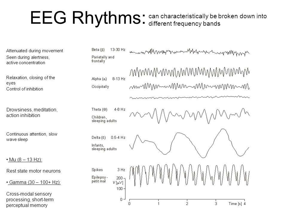 EEG Rhythms: can characteristically be broken down into