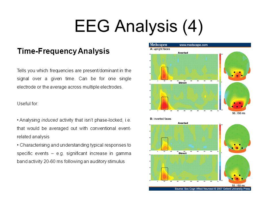 EEG Analysis (4) Time-Frequency Analysis
