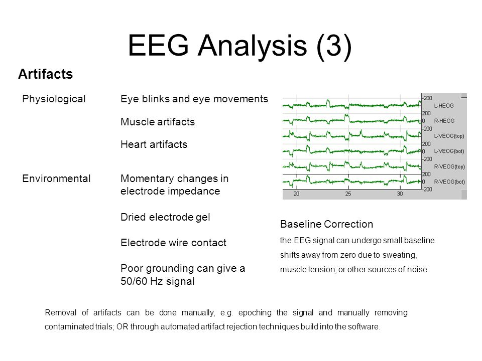 EEG Analysis (3) Artifacts Physiological Eye blinks and eye movements