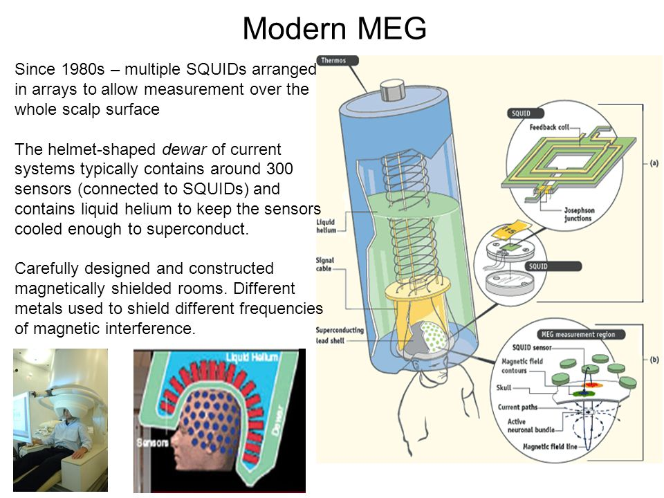 Modern MEG Since 1980s – multiple SQUIDs arranged in arrays to allow measurement over the whole scalp surface.