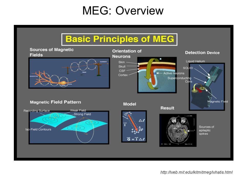MEG: Overview