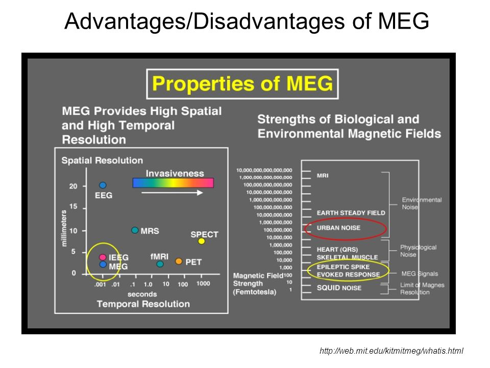Advantages/Disadvantages of MEG