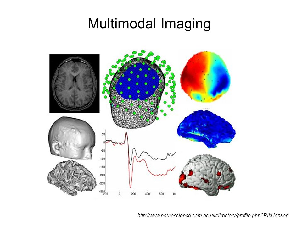 Multimodal Imaging Combining different imaging modalities enables one to make use of all of their strengths.
