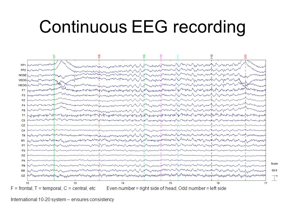 Continuous EEG recording