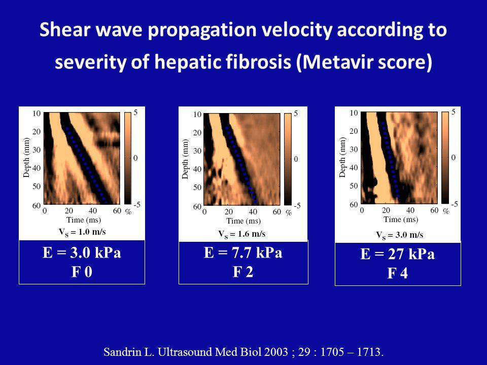 Sandrin L. Ultrasound Med Biol 2003 ; 29 : 1705 – 1713.