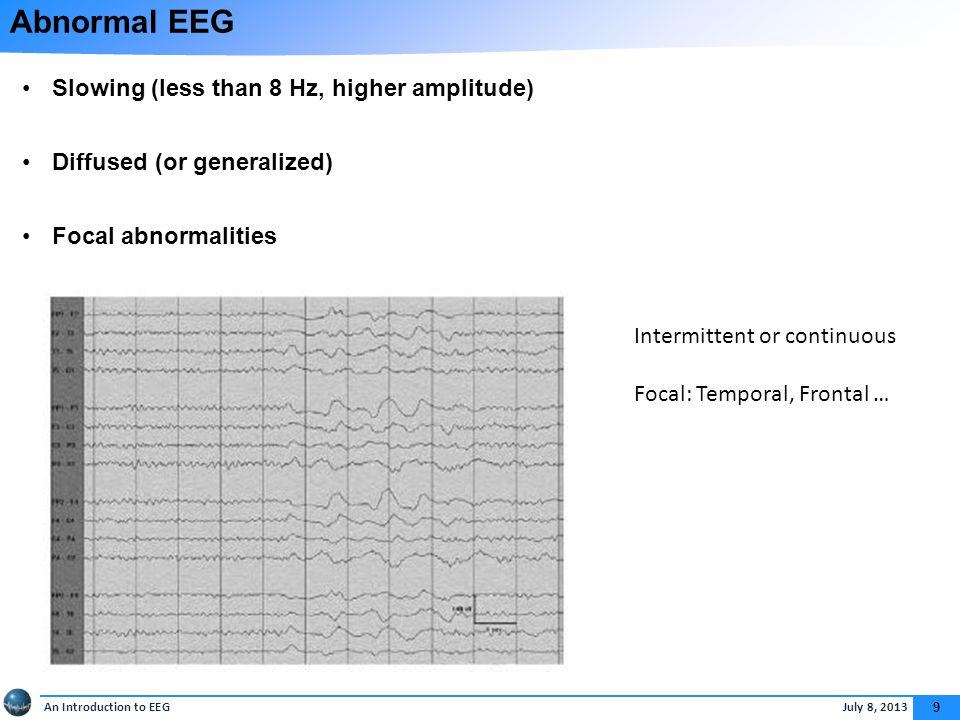 Epileptiform Abnormalities