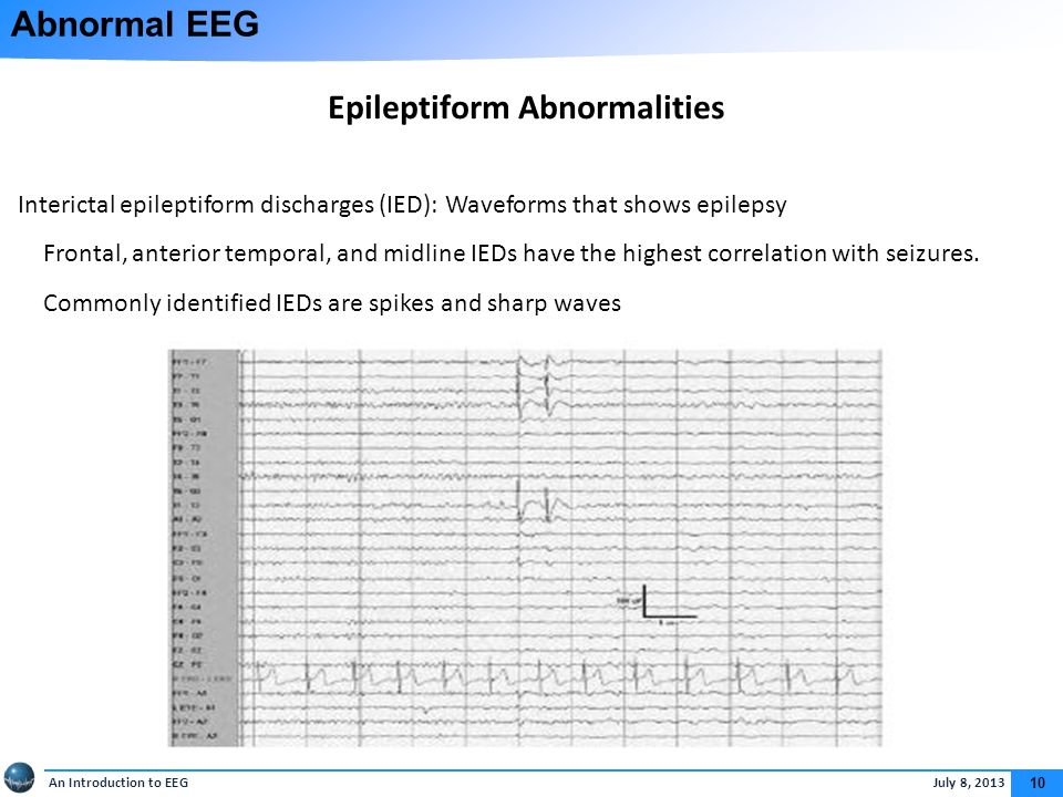 Abnormal EEG Sharp waves: 70 to 200 m sec