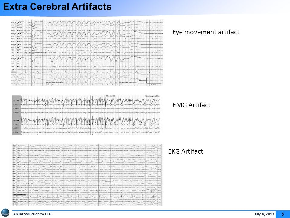 Normal EEG The most important factors that a subject must have to be considered as normal are: Anterior-posterior gradient.