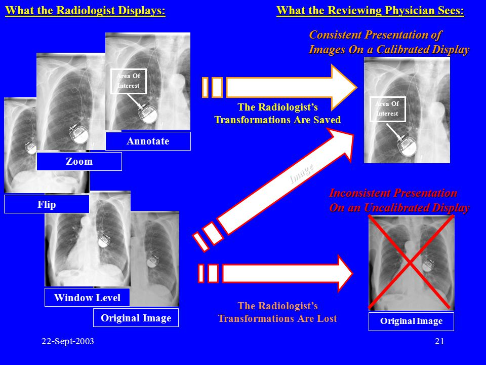 What the Radiologist Displays: What the Reviewing Physician Sees: