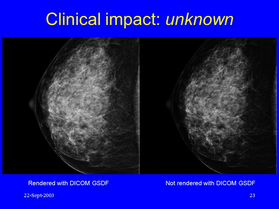 Clinical impact: unknown