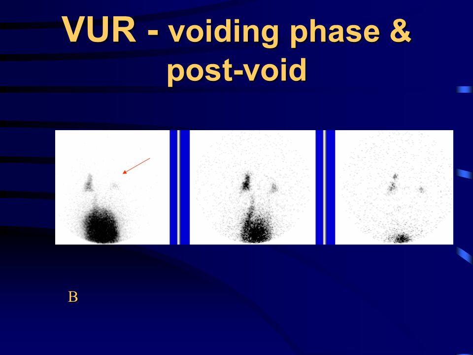 VUR - voiding phase & post-void
