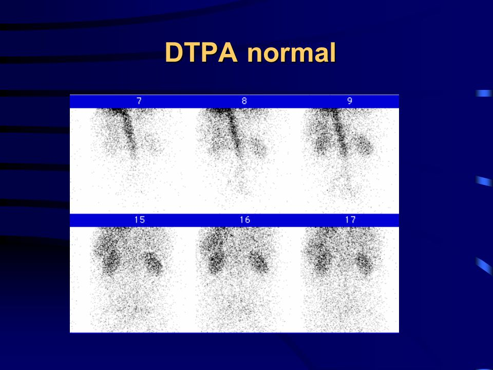 DTPA normal