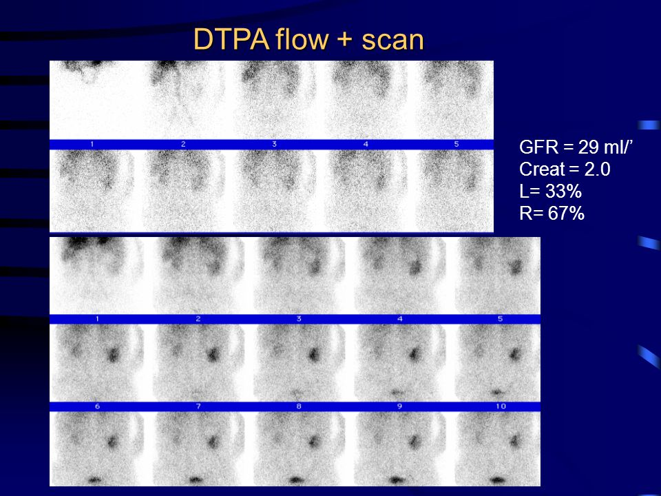 DTPA flow + scan GFR = 29 ml/' Creat = 2.0 L= 33% R= 67%
