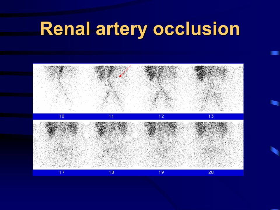 Renal artery occlusion