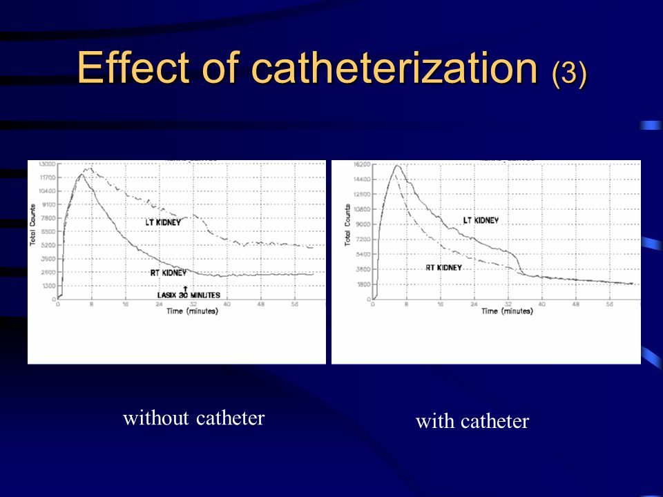 Effect of catheterization (3)