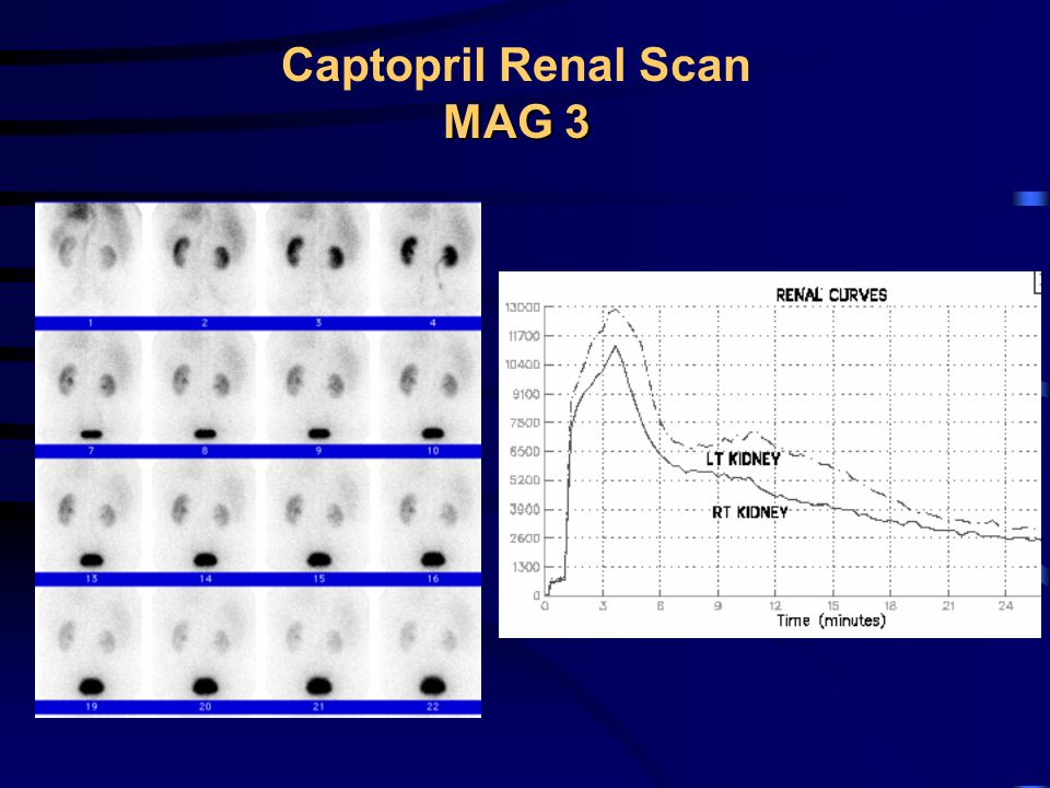 Captopril Renal Scan MAG 3