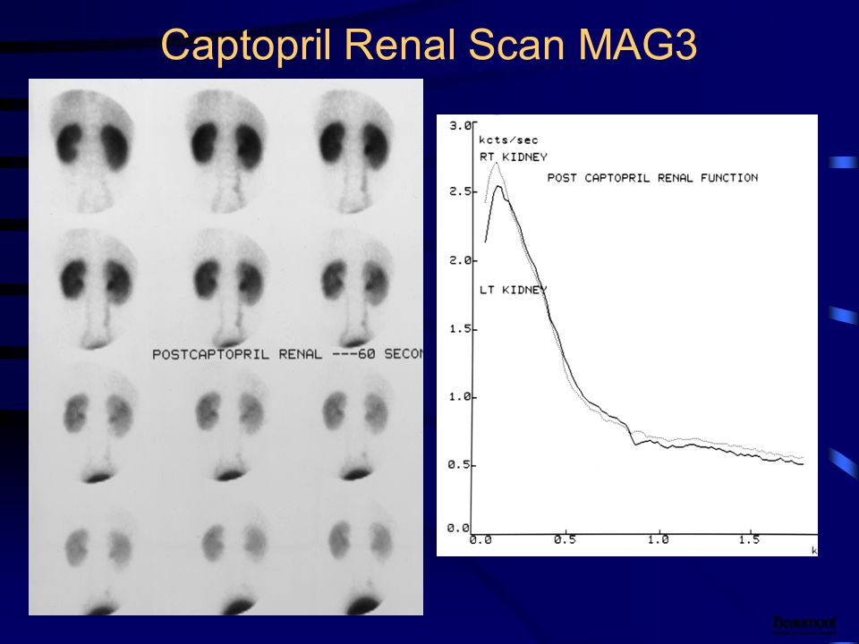 Captopril Renal Scan MAG3