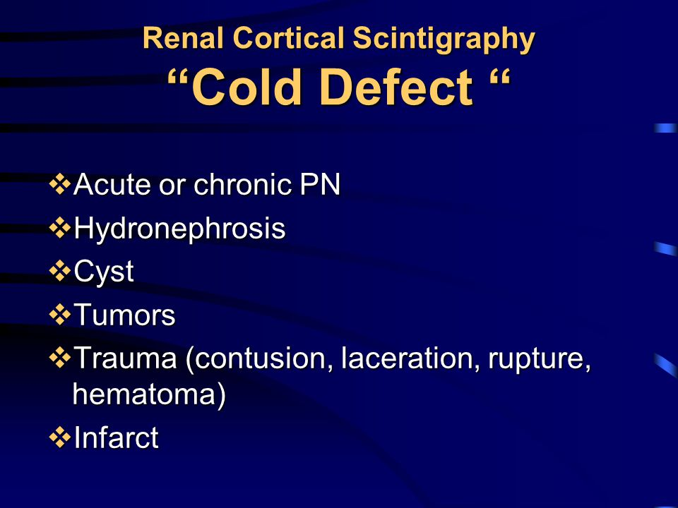 Renal Cortical Scintigraphy Cold Defect