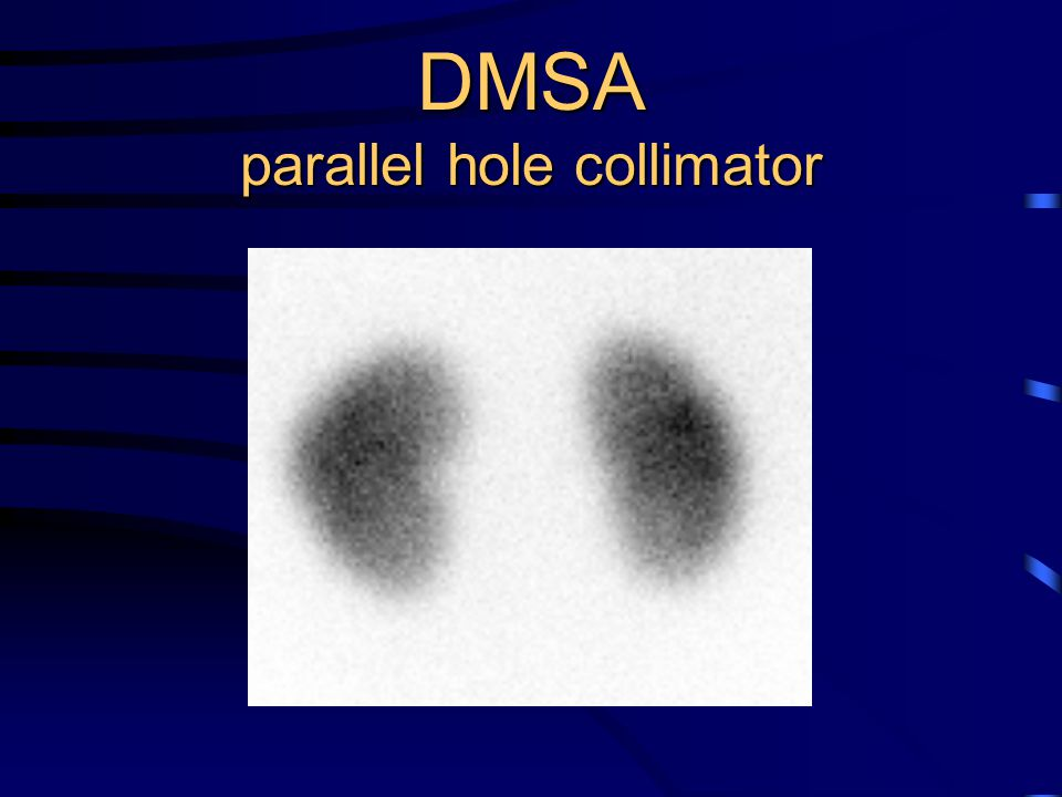 DMSA parallel hole collimator