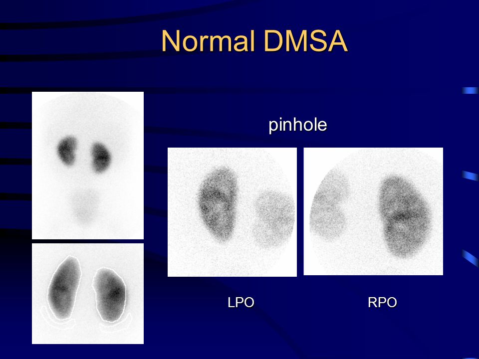 Normal DMSA pinhole LPO RPO