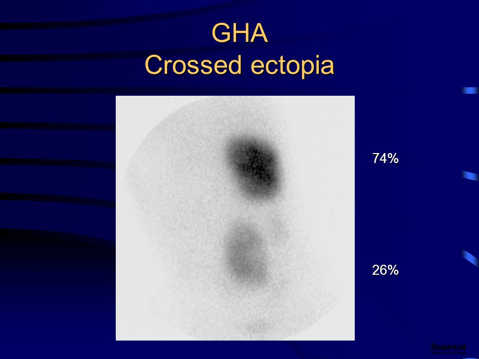 GHA Crossed ectopia 74% 26%