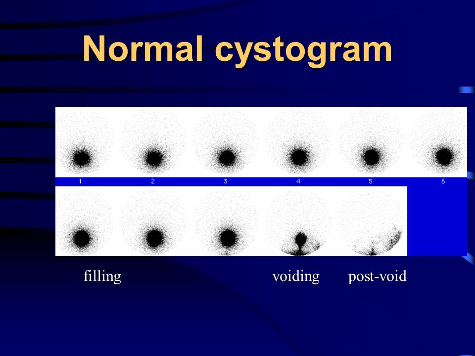 Normal cystogram filling voiding post-void